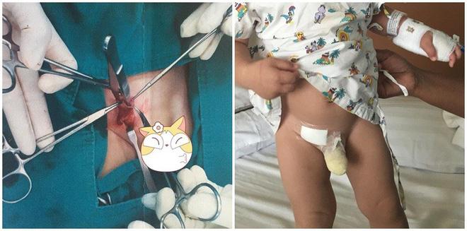 Thấy con có khối u nhỏ ở háng nhưng mẹ không bận tâm, đưa con đi khám nghe bác sĩ nói mẹ mới hốt hoảng-1