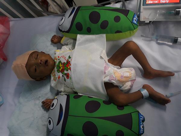 Thắt lòng bé trai 5 tháng tuổi bị hoại tử ruột phải cắt gần hết sau bữa ăn đầu đời-1