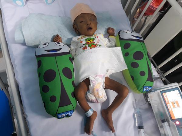 Thắt lòng bé trai 5 tháng tuổi bị hoại tử ruột phải cắt gần hết sau bữa ăn đầu đời-4