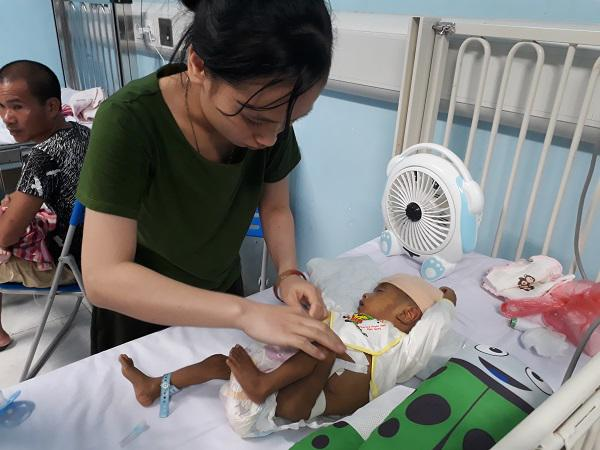 Thắt lòng bé trai 5 tháng tuổi bị hoại tử ruột phải cắt gần hết sau bữa ăn đầu đời-5