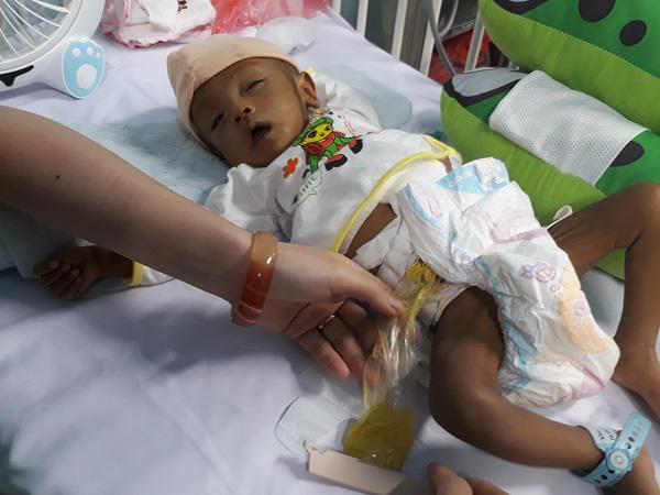 Thắt lòng bé trai 5 tháng tuổi bị hoại tử ruột phải cắt gần hết sau bữa ăn đầu đời-3