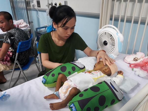 Thắt lòng bé trai 5 tháng tuổi bị hoại tử ruột phải cắt gần hết sau bữa ăn đầu đời-2