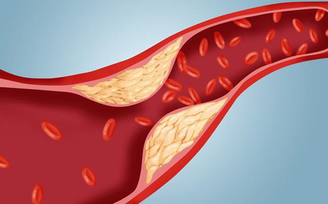 Công thức vàng' làm sạch mạch máu, giảm mỡ máu: Bài thuốc nên có trong mọi gia đình-1