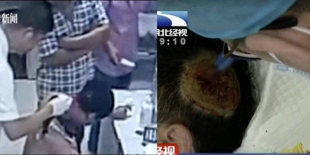 Sạc dự phòng phát nổ dưới gối, người đàn ông bị thương nghiêm trọng-1