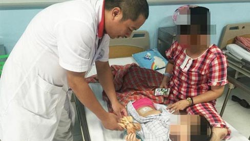Mẹ sững sờ khi con gái 3 tuổi bị u buồng trứng, đừng chủ quan nếu trẻ đau bụng