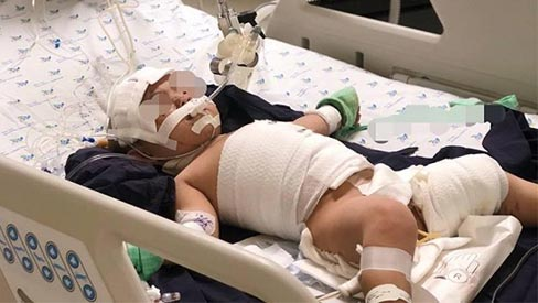 Bé gái 20 tháng tuổi bị lột tróc da do bỏng nước sôi