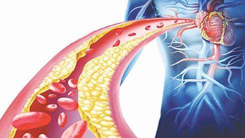 Thực hư tác dụng của 'nước thần dược' làm sạch mạch máu, giảm mỡ máu