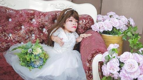 Chuyện cảm động sau bộ ảnh cưới của cô dâu nặng 13 kg