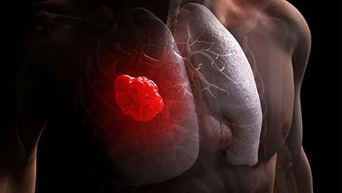 4 thói quen thường ngày gây ung thư phổi còn nhanh hơn cả hút thuốc lá