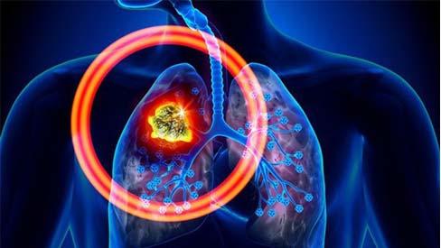 Cách phát hiện sớm căn bệnh ung thư phổi