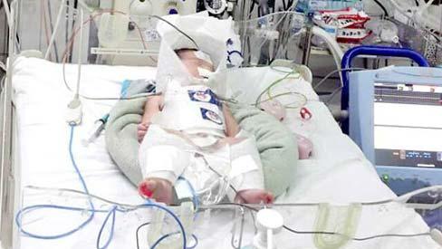Mẹ bị vỡ gan lúc chuyển dạ, con tổn thương não được cứu sống ngoạn mục