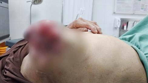 Hãi hùng ngực lở loét, chảy dịch vì đắp lá chữa ung thư vú
