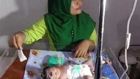 Em bé sinh ra có 1 mắt, chỉ sống được 7 giờ, nghe bác sĩ giải thích nguyên nhân mẹ mới giật mình