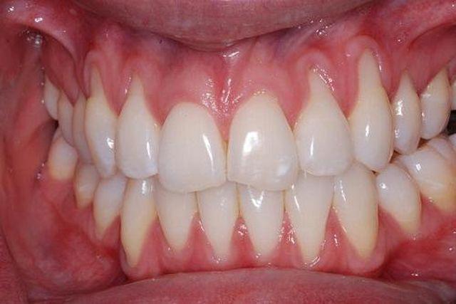 Cô gái bị mòn răng, tụt lợi đau đớn vì suốt 10 năm chải răng theo cách triệu người làm-2