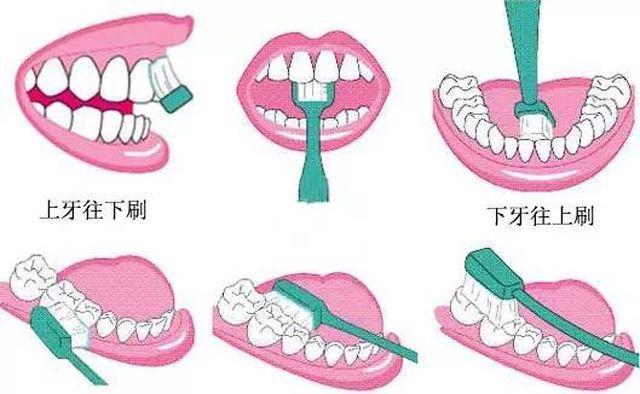 Cô gái bị mòn răng, tụt lợi đau đớn vì suốt 10 năm chải răng theo cách triệu người làm-5