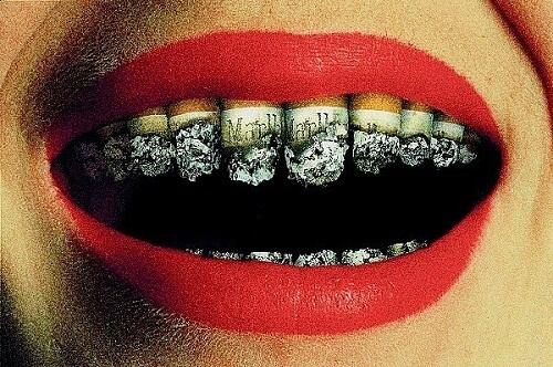 Bệnh về răng miệng do thuốc lá gây ra-1