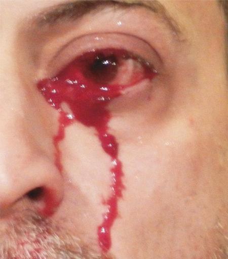 Người đàn ông khóc ra máu suốt cả tiếng đồng hồ