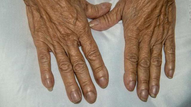6 dấu hiệu bất thường báo bệnh tim-1