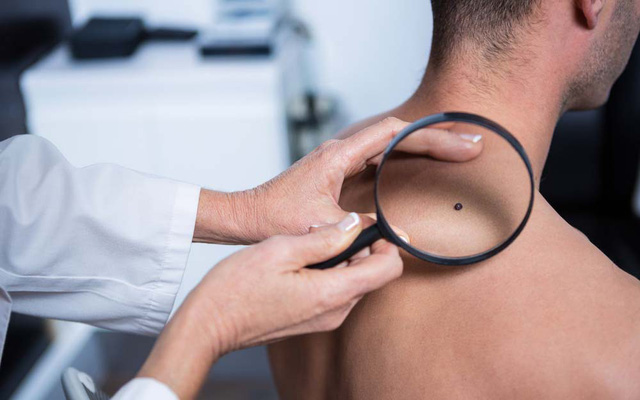 13 dấu hiệu ung thư mà nam giới không được bỏ qua-6