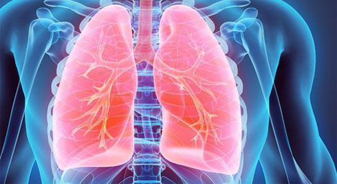 Giảm nguy cơ mắc bệnh ung thư phổi với những biện pháp đơn giản ai cũng làm được