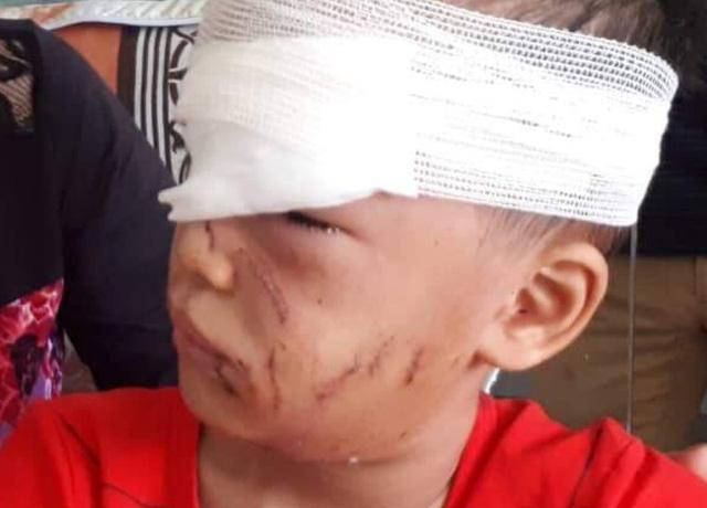 Kinh hoàng bé trai 6 tuổi bị chó nhà cắn rách mặt-2