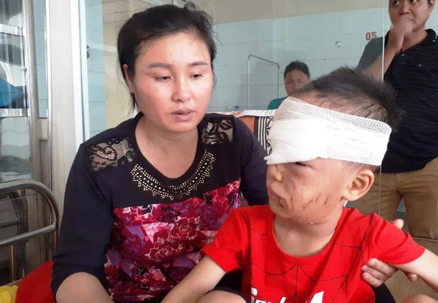 Kinh hoàng bé trai 6 tuổi bị chó nhà cắn rách mặt-1