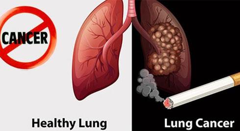 Mách bạn cách phòng tránh ung thư phổi ngay từ bây giờ