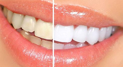 Cách làm trắng răng tại nhà đơn giản mà hiệu quả