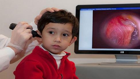 3 sai lầm khi điều trị viêm tai giữa ở trẻ cha mẹ nên tránh