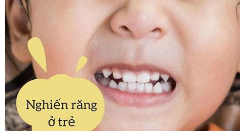 Cách trị dứt điểm chứng nghiến răng ở trẻ