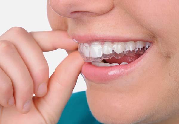 Cách trị dứt điểm chứng nghiến răng ở trẻ-1