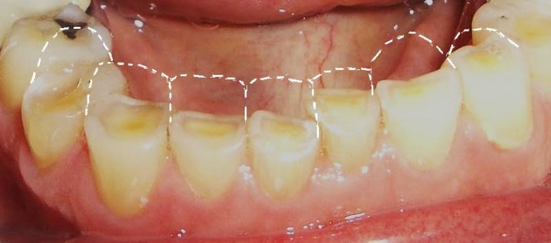 Cách trị dứt điểm chứng nghiến răng ở trẻ-2