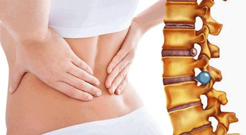 Bệnh thoát vị đĩa đệm - triệu chứng, nguyên nhân và cách điều trị