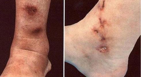 Dấu hiệu cảnh báo bệnh viêm nút quanh động mạch