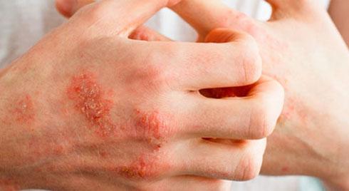 Chàm Eczema- căn bệnh gây đau đớn về mùa đông