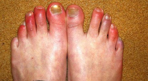 Cước tay chân -  cách phòng chống khi thời tiết rét đậm