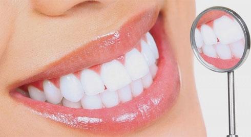 Những điều bạn cần biết trước khi  làm trắng răng