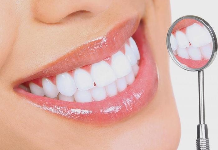 Những điều bạn cần biết trước khi  làm trắng răng-1