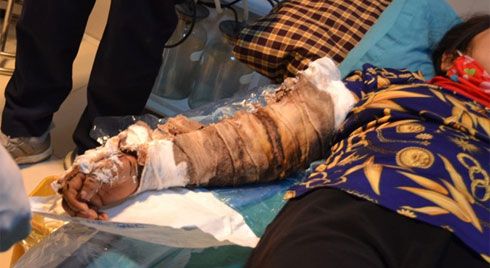 Cánh tay bốc mùi của bệnh nhân bị bỏng tự chữa bằng cách đắp thuốc nam