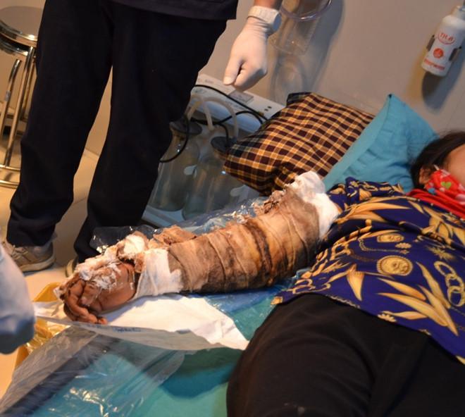 Cánh tay bốc mùi của bệnh nhân bị bỏng tự chữa bằng cách đắp thuốc nam-1