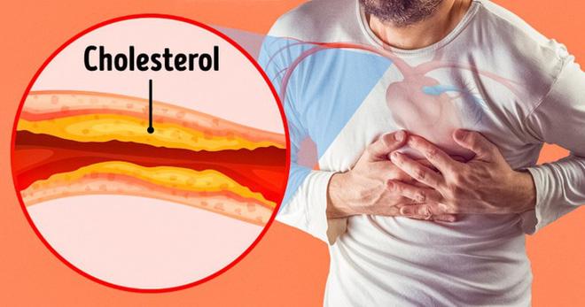 Cẩn thận với những triệu chứng cảnh báo bệnh tắc động mạch-1