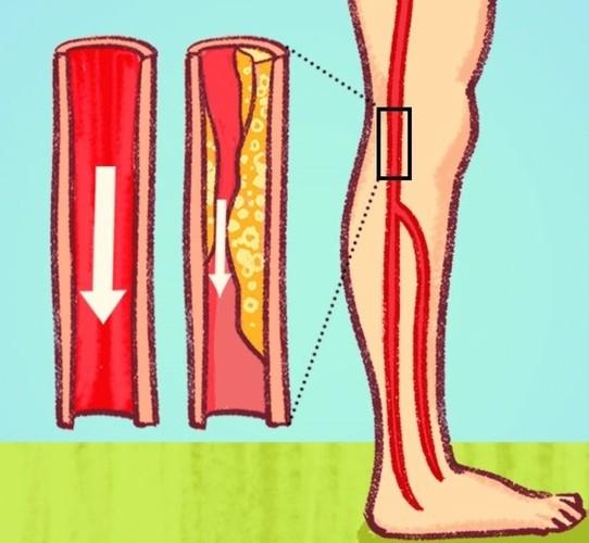 Cẩn thận với những triệu chứng cảnh báo bệnh tắc động mạch-5