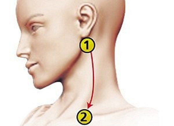 Mất 10 phút cứu sống cả đời, ai cũng nên biết đề phòng đột quỵ, tai biến-3