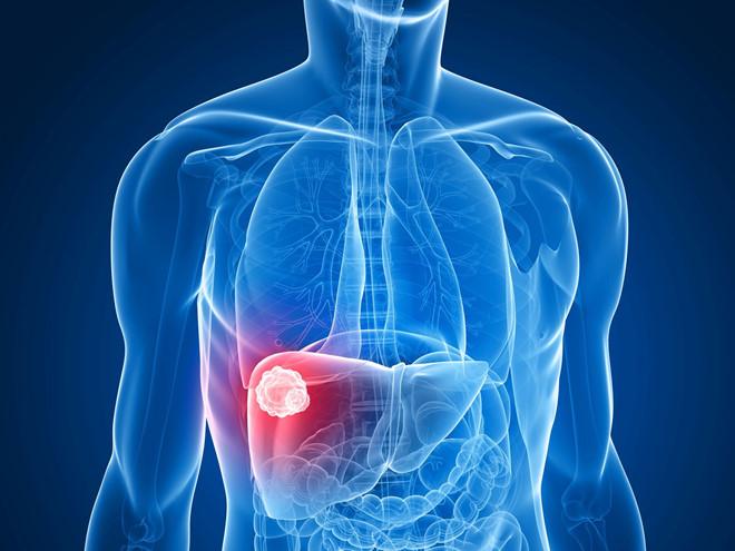 Những ai dễ mắc bệnh ung thư gan, cảnh giác trước khi quá muộn-1