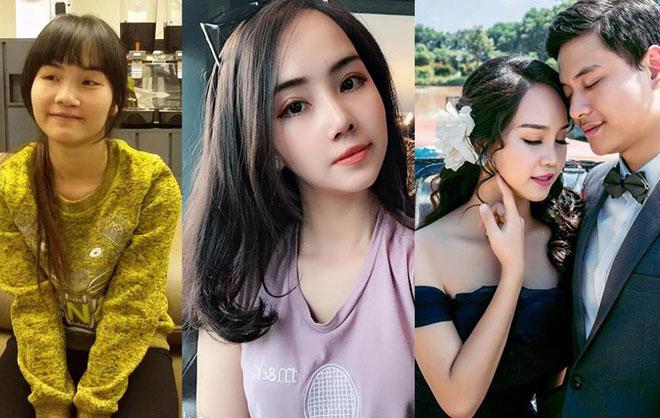 Những cô gái, chàng trai Việt lột xác nhờ thẩm mỹ có sợ sinh con như bản gốc?-1