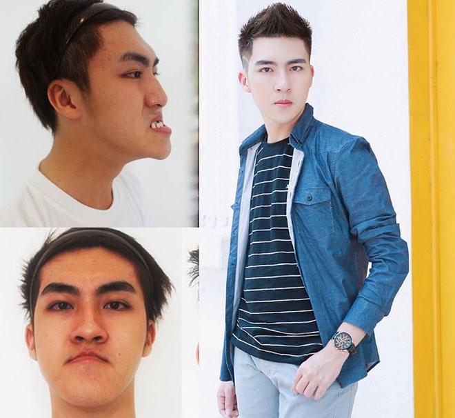 Những cô gái, chàng trai Việt lột xác nhờ thẩm mỹ có sợ sinh con như bản gốc?-2