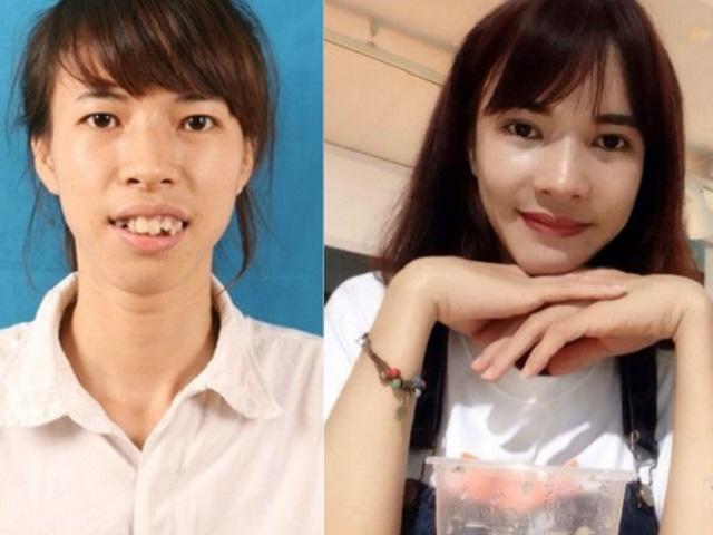 Những cô gái, chàng trai Việt lột xác nhờ thẩm mỹ có sợ sinh con như bản gốc?-5