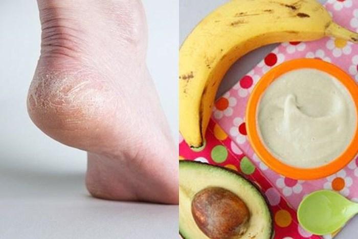 Cách trị nứt gót chân  không thể đơn giản hơn trong ngày đông-3
