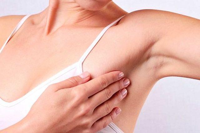 Chủ quan nghĩ ngực căng tức do cho con bú, mẹ U40 khóc ròng khi biết mắc ung thư vú-5
