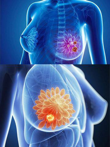 Chủ quan nghĩ ngực căng tức do cho con bú, mẹ U40 khóc ròng khi biết mắc ung thư vú-2